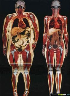 Notice how when you gain weight, not only is there more superficial fat, but all of your organs are enlarge and covered with fat in your belly as well.  It's the fat that you can't see that is the most dangerous.