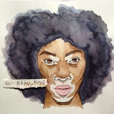 Vitiligo Art.. Khu_Kuyo