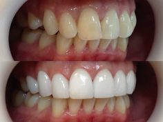 Hollywood Smile by Me  #veneers #dental #teeth