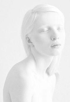 #Albino girl