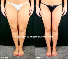 Keep reading to learn how to get toned legs fast. Discover how to tone legs today! Get Skinny Thighs, Get Skinny Fast, Slim Thighs, How To Get Thin, How To Slim Down, Thin Legs Workout, Thinner Thighs, Lose Thigh Fat, Sport Diet