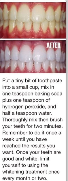 This is actually really effective! I've done it a couple of times and I can see a difference.