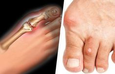 Gout Causes - Truth About Gout Rheumatische Arthritis, Personal Wellness, American Diet, Different Diets, Uric Acid, Health And Beauty Tips, Health And Nutrition, Human Body, Sang