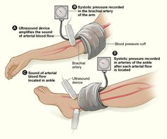 The illustration shows the ankle-brachial index test. The test compares blood pressure in the ankle to blood pressure in the arm. As the blood pressure cuff deflates, the blood pressure in the arteries is recorded. Blood Pressure Numbers, Blood Pressure Chart, Blood Pressure Remedies, Lower Blood Pressure, Vascular Ultrasound, Peripheral Artery Disease, Gestational Hypertension, Pulmonary Hypertension, Nursing