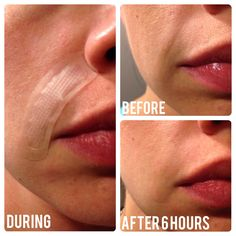 Check out my results using Rodan+Fields Acute Care! Fill a wrinkle while you sleep, no needles required! #WrinkleWarrior #NoFilter www.rachrrey.myrandf.com