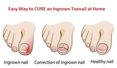 Eliminating Ingrown Toenails At Home Is Easier Than You Think. #2 Is A Lifesaver. - http://eradaily.com/eliminating-ingrown-toenails-home-easier-think-2-lifesaver/