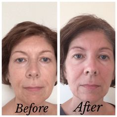 Tria Age-defying-laser before-after