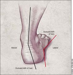 Lack of support allows the foot to collapse inward or pronate.  This can lead to heel pain and other foot problems.