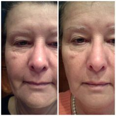 My sister in laws right side real results in just 9 weeks! What are you waiting for? Contact me to start your own results today! www.YPhelps.nerium.com