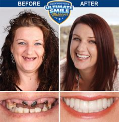 Heather's Smile Makeover Story  #burgesscenterforcosmeticdentistry #cosmeticdentist