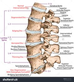 This improper alignment causes the facet joints – the areas where the vertebral bones touch – to twist into an unnatural position.