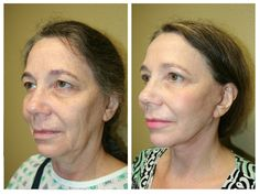 Face – Before & After | Sarasota Surgical Arts