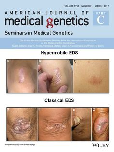 The Ehlers‐Danlos Syndromes: Reports from the International Consortium on the Ehlers‐Danlos Syndromes: American Journal of Medical Genetics Part C: Seminars in Medical Genetics : Vol 175 , No 1 Chronic Fatigue, Chronic Pain, Fibromyalgia, Chronic Illness, Hypermobility, Vascular Ehlers Danlos Syndrome, Ankylosing Spondylitis, Irritable Bowel Syndrome, Invisible Illness