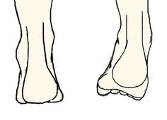 Ankle Strengthening for Correcting Pronation