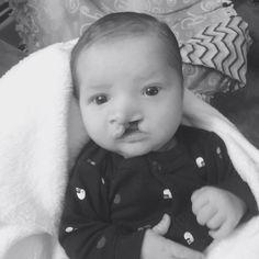 Baby Kanon - kids, boys, grandkids, family, loves, babies, cleft lip