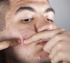 This Is Why People Are Obsessed With Pimple-Popping Videos Poping Pimples, Pimple Popping, Best Tanning Lotion, How To Get Rid Of Pimples, Acne Solutions, Fake Tan, Skin Care Remedies, How To Treat Acne, Buttons
