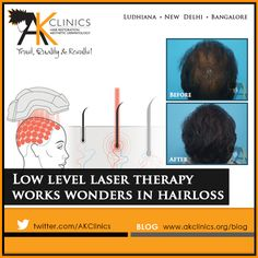 Low Level Laser therapy has been used extensively and effectively in treating hair loss as a standalone treatment or along with other techniques like PRP Therapy or Mesotherapy