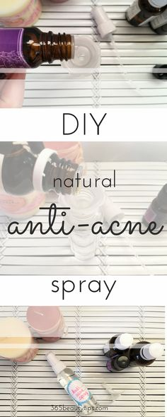DIY anti acne spray! Fight off acne using this natural spray - on your face, back, or any problem area!