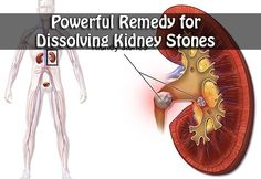 Powerful Remedy for Dissolving Kidney Stones