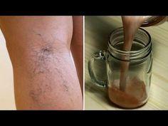 5 utilizări unice ale oțetului de cidru de mere pentru varice
