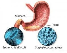 Home Remedies For Food Poisoning - Natural Treatments & Cure For Food Poisoning | Search Home Remedy