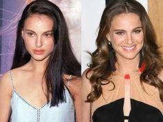 Natalie Portman, Nose Job, Botox and Facial Surgery