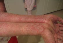 Natural Remedies for Psoriasis.What is Psoriasis? Causes and Some Natural Remedies For Psoriasis.Natural Remedies for Psoriasis - All You Need to Know Home Treatment, Natural Treatments, Natural Cures, Natural Skin, Nail Treatment, Natural Healing, Dry Skin Causes, Stress, Health And Wellness