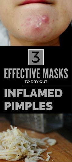 3 Effective Masks to Dry Out Inflamed Pimples