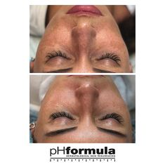 Excellent hyperpigmentation skin resurfacing results from our pHformula skin specialists in Russia. thank you for sharing these great results. Skin Resurfacing, Skin Specialist, Dream Job, Genetics, Healthy Skin, Work Hard, Improve Yourself, Russia, Working Hard