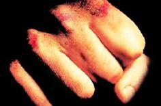 Infermiere picchiato da un paziente al Policlinico di Bari  http://tuttacronaca.wordpress.com/2013/09/06/infermiere-picchiato-da-un-paziente-al-policlinico-di-bari/