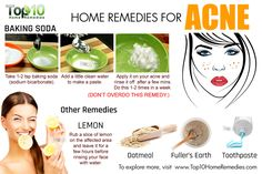 home remdies for acne