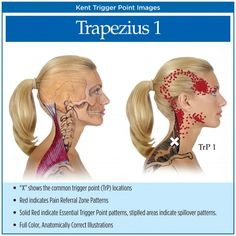 Title: Headaches - Trigger Points and Practice Building. Summary: While there are many causes for headaches, one contributing factor is the presence of myofascial trigger points and the referred phenomena they produce. Dor Cervical, Referred Pain, Trigger Point Therapy, Head Pain, Anatomy And Physiology, Massage Therapy, Physical Therapy, Health Benefits, Tension Headache Relief
