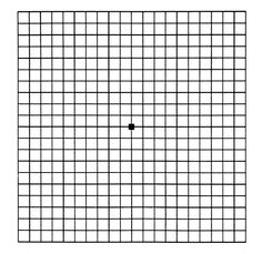 Amsler Grid Eye Center National Institutes Of Health Laser