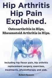 Hip Arthritis Hip Pain Explained. Osteoarthritis in Hips Rheumatoid Arthritis in Hips. Including Hip Arthritis Surgery Hip Flexor Pain Exercises Paperback ? Import 12 Feb 2014