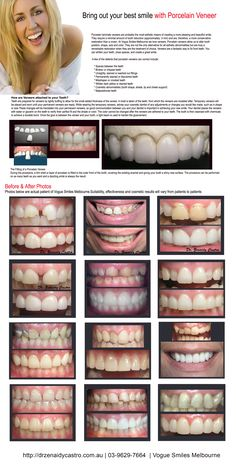 If you're looking for the best dentist Melbourne CBD? We offer General, Restorative and Cosmetic Dentistry Missing Teeth, Porcelain Veneers, Melbourne Cbd, Best Dentist, Something About You, Before After Photo, Good Smile, Cosmetic Dentistry, Tired