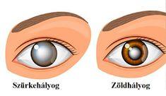 9-boha-na-chorobie-pomáha-zdravujete-jednoducho-s-k-ketkes.com White Out Tape, Round Sunglasses, Round Frame Sunglasses