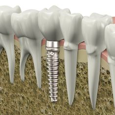 Dental Implants Always interesting what you can find when you type in elective surgery and other related terms