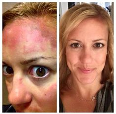 "Check out these results! Here's what Christina had to say about her experience with Rodan + Fields REVERSE line and tools: ""I never tire of sharing this picture! On the left is me before R+F - back when I thought expensive, painful laser treatments were the only way to reverse sun damage and even out my skin tone. On the right is after R+F. Using their products gave me better results, cost waaaay less, and is pain free!"" www.hlrussell.myrandf.com"