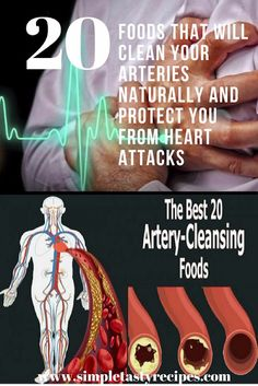 20 Foods That Will Clean Your Arteries Naturally And Protect You From Heart Attacks - The Healthy