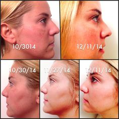 Abby Lauren used Reverse accelerator pack to get her beautiful results.