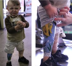 Tattoo Artist Inks Up Toddlers Prosthetic Leg with 'Finding Nemo' Inspired Art | AquaNerd