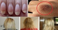 Here are the Ingredients that Can Help you if You Suffer from Dry Hair, Hair Loss, or Weak Nails! List Of Nutrients, Hair Loss Causes, Sr1, Nail Polish Trends, Hair Loss Remedies, Skin Food, Dry Hair, Skin Treatments, You Nailed It