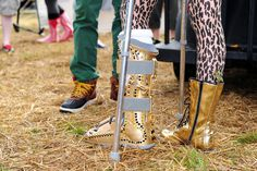 Jessie J Photos Photos - A stylish Jessie J shoes off a matching gold foot cast to go with her other boot at V Festival 2011. - Rupert Grint at the V Festival