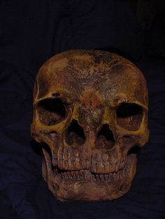 Two Faced skull.  This looks fully adult with adult dentition.  That meand this person survived, possibly past 18 years of age.