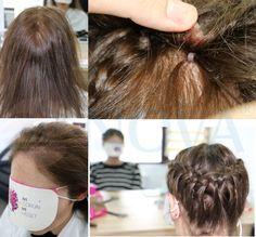 Seyrek saç problemi yaşayan kadınlar saçlarını kazıtmadan folligraft sayesinde daha gür saçlara sahip olabilirler... Bilgi için 0212 325 40 72