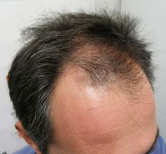 Un nuovo rimedio per la crescita dei capelli, che stupisce gli uomini