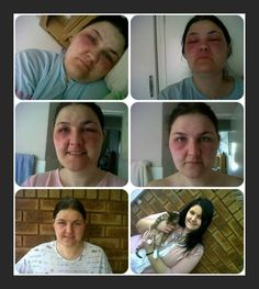 """For 2 years Marika suffered with """"bleeding eczema"""". She was bedridden with excruciating pain, nothing helped until a friend recommended she try Xango's mangosteen juice. Her mom drove 530km to get her the juice, which hadn't even been launched in Namibia at that time (Oct/Nov 2012). Within 4 days, her skin started clearing, and after 2 weeks the bottom right pic was taken -- she was almost back to her healthy, happy self. """"I was sent this miracle to share with everyone."""" Workouts, Juice, Product Launch, Models, Mom, Healthy, Happy, Fitness, Beautiful"""