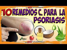 Psoriasis Treatment Over The Counter Product Psoriasis Disease, Psoriasis On Hands, Severe Psoriasis, Psoriasis Arthritis, Psoriasis Skin, Plaque Psoriasis, Psoriasis Remedies, Nail Psoriasis Treatment, Home Remedies