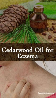 For every ailment there is a cure available in the nature. Eczema is a chronic skin ailment that affects about 30 million Americans. Cedarwood oil for eczema is an effective home remedy to use. Scientists aren't aware of its cause and experts concluded that you can't permanently treat eczema. However, using steroid creams and natural …