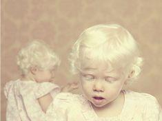 Albinos is a beautiful photo essay of people with albinism started in 2009 by Brazilian photographer Gustavo Lacerda. Diane Arbus, Bebe Albino, Albino Twins, Albino Girl, Modelo Albino, Beautiful Children, Beautiful People, Melanism, Photographs Of People